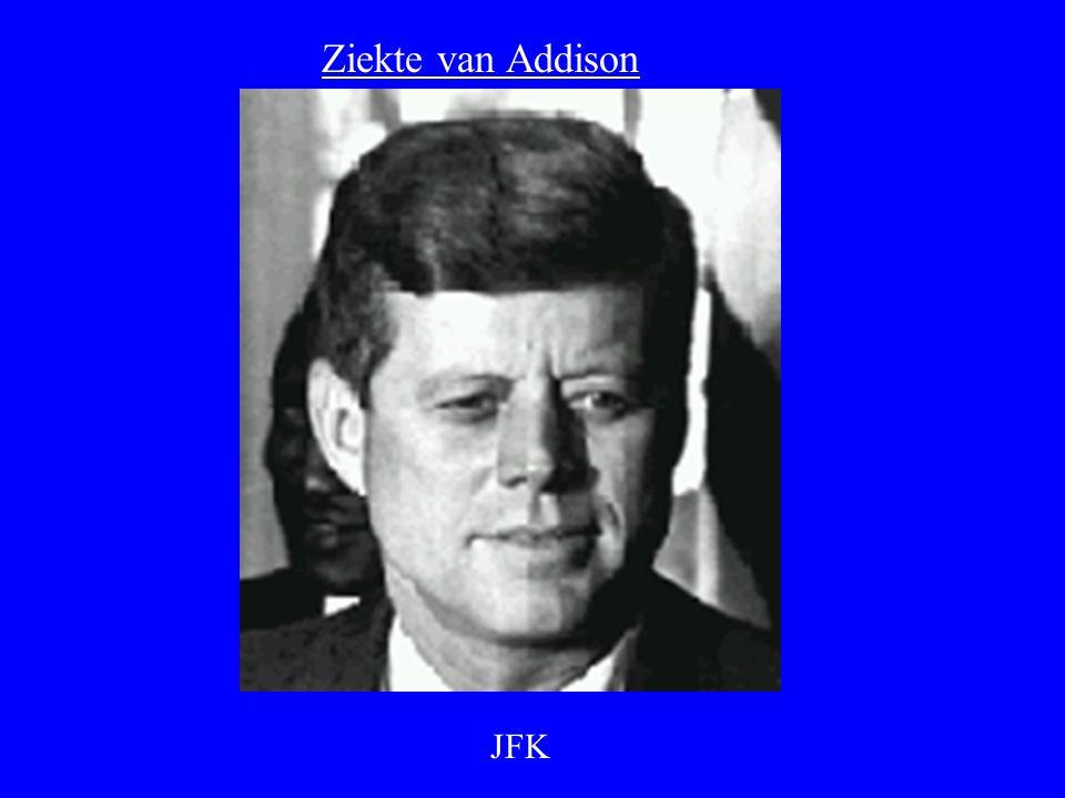 Ziekte van Addison -ZIEKTE VAN ADDISON = BIJNIERSCHORSINSUFFICIÊNTIE. -VROEGER TBC. - NU : AUTO-IMMUUN, AIDS.