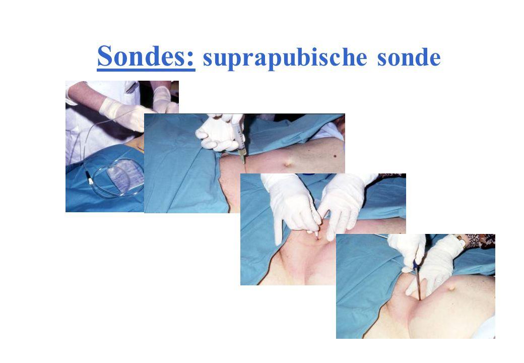 Sondes: suprapubische sonde