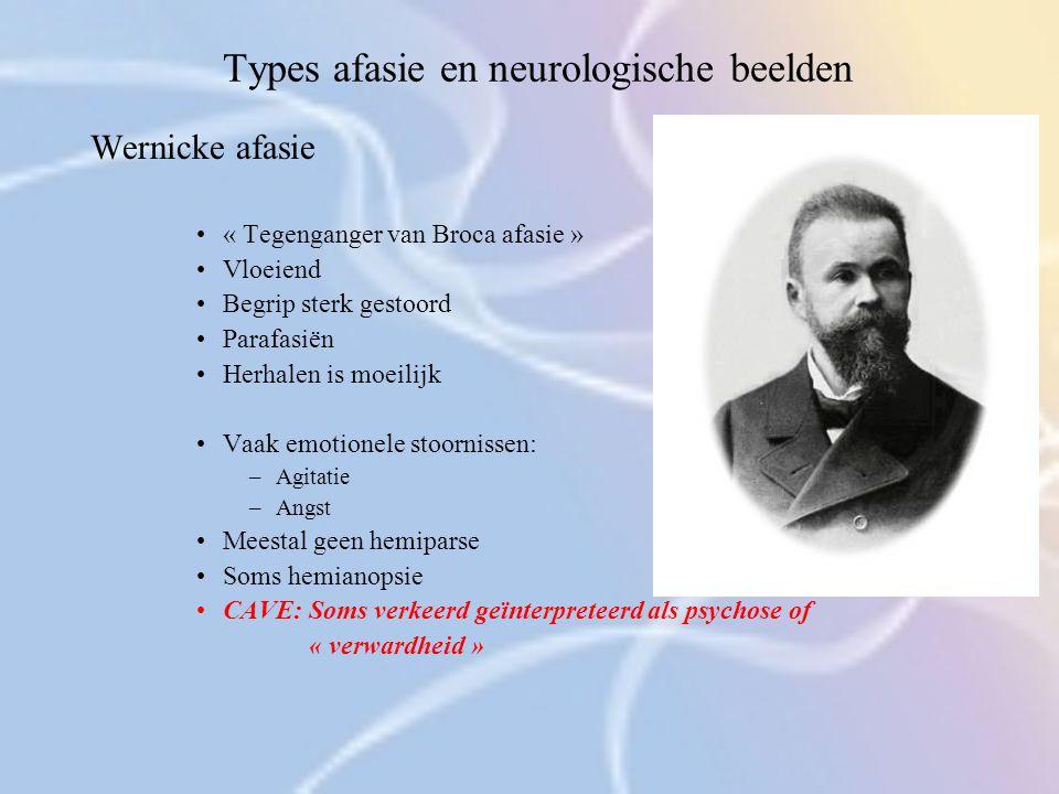 Types afasie en neurologische beelden