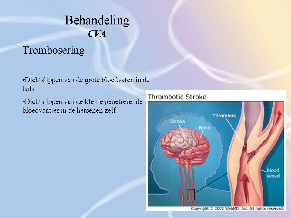 Behandeling CVA Trombosering