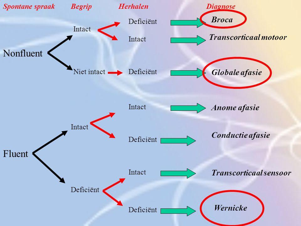 Nonfluent Fluent Broca Transcorticaal motoor Globale afasie