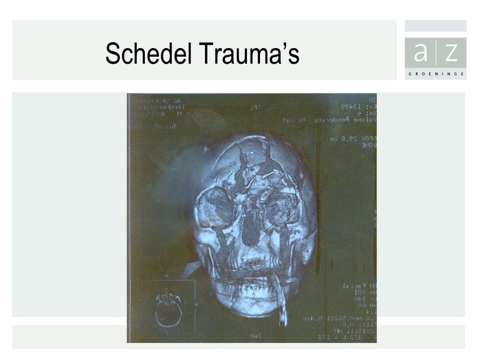 Schedel Trauma's