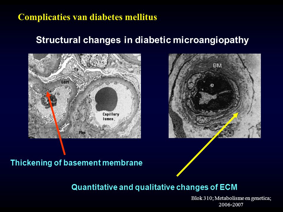 Structural changes in diabetic microangiopathy