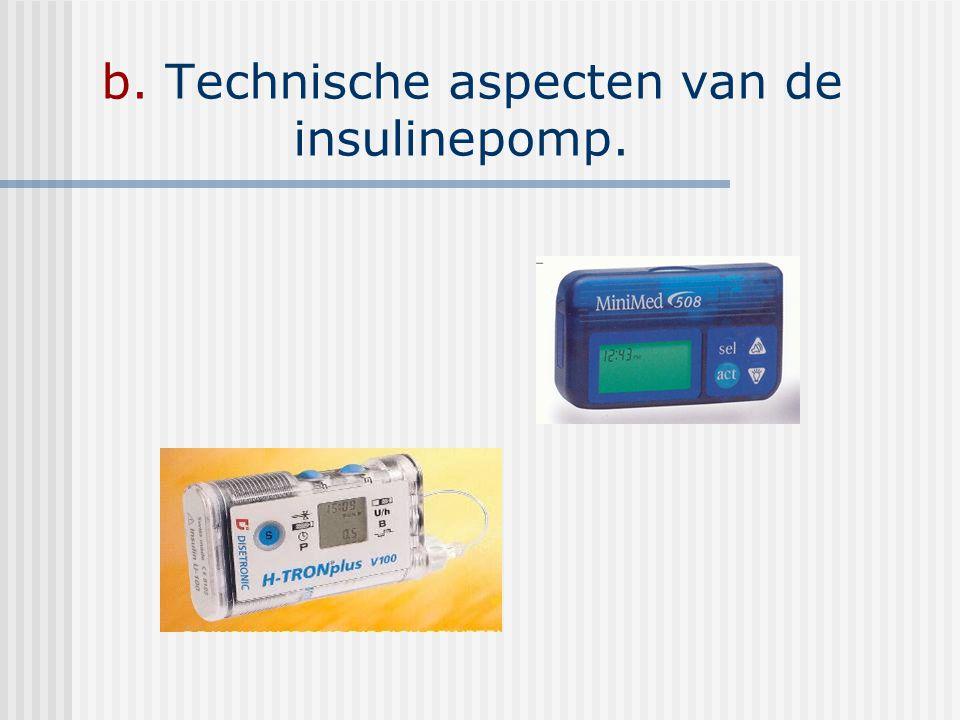 b. Technische aspecten van de insulinepomp.