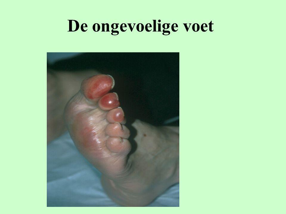 De ongevoelige voet