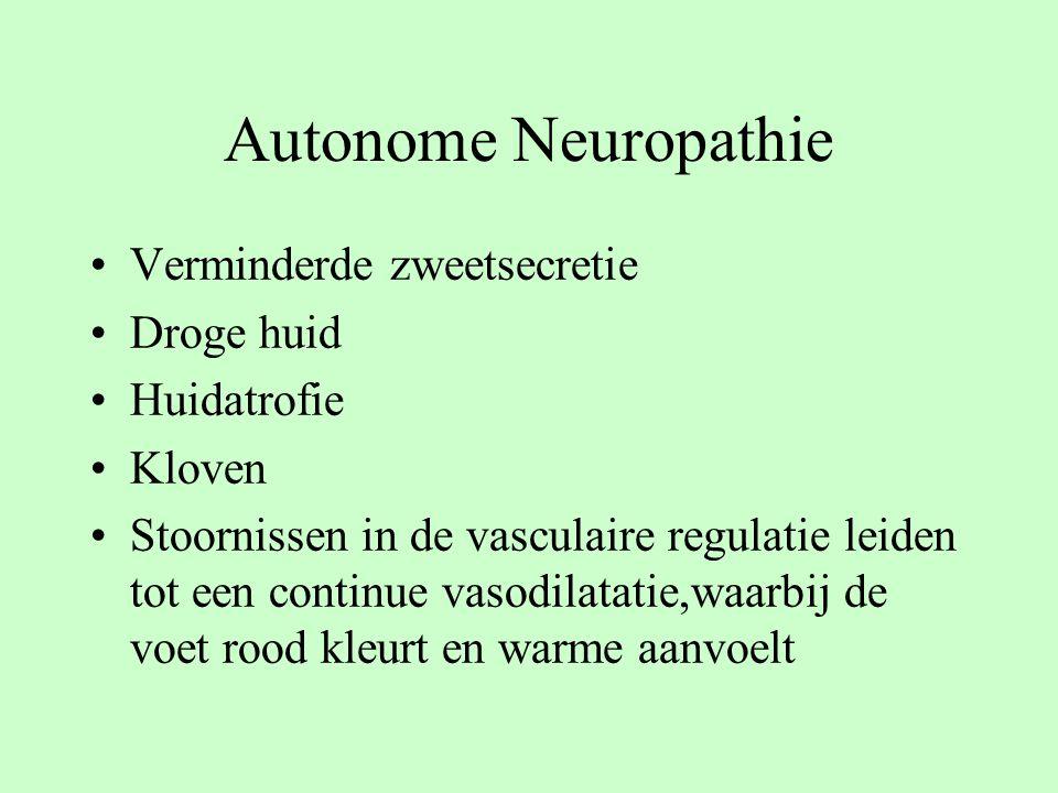 Autonome Neuropathie Verminderde zweetsecretie Droge huid Huidatrofie