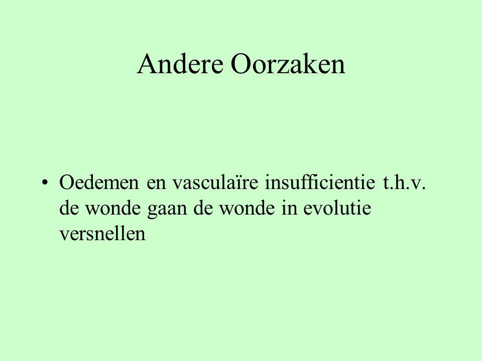 Andere Oorzaken Oedemen en vasculaïre insufficientie t.h.v.