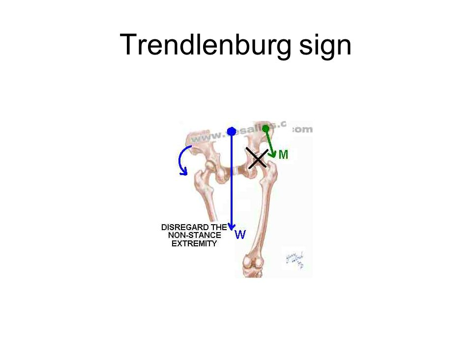 Trendlenburg sign