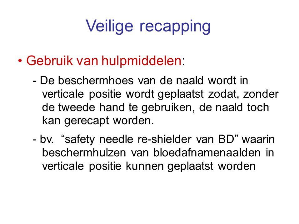 Veilige recapping • Gebruik van hulpmiddelen: