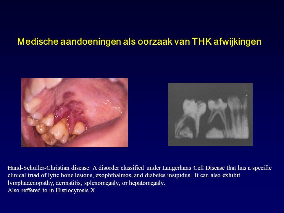 Medische aandoeningen als oorzaak van THK afwijkingen