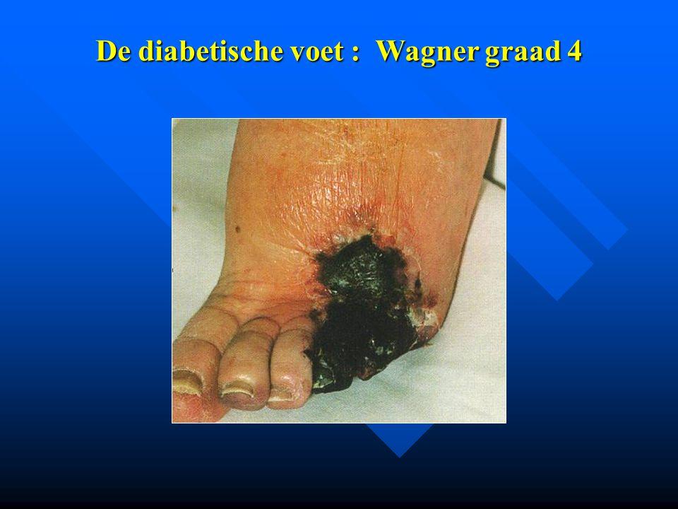 De diabetische voet : Wagner graad 4