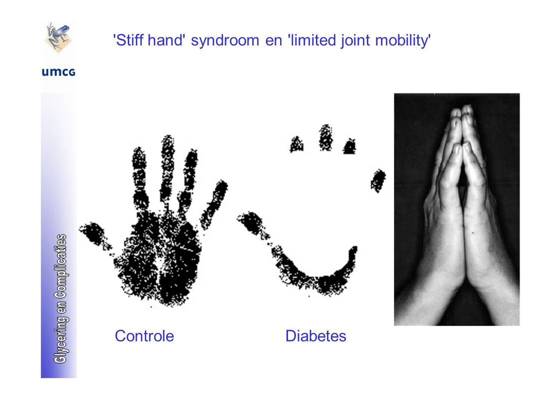 Stiff hand syndroom en limited joint mobility