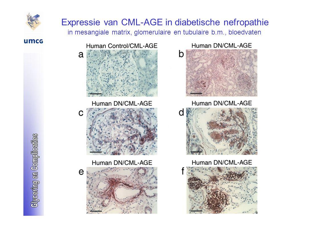 Expressie van CML-AGE in diabetische nefropathie