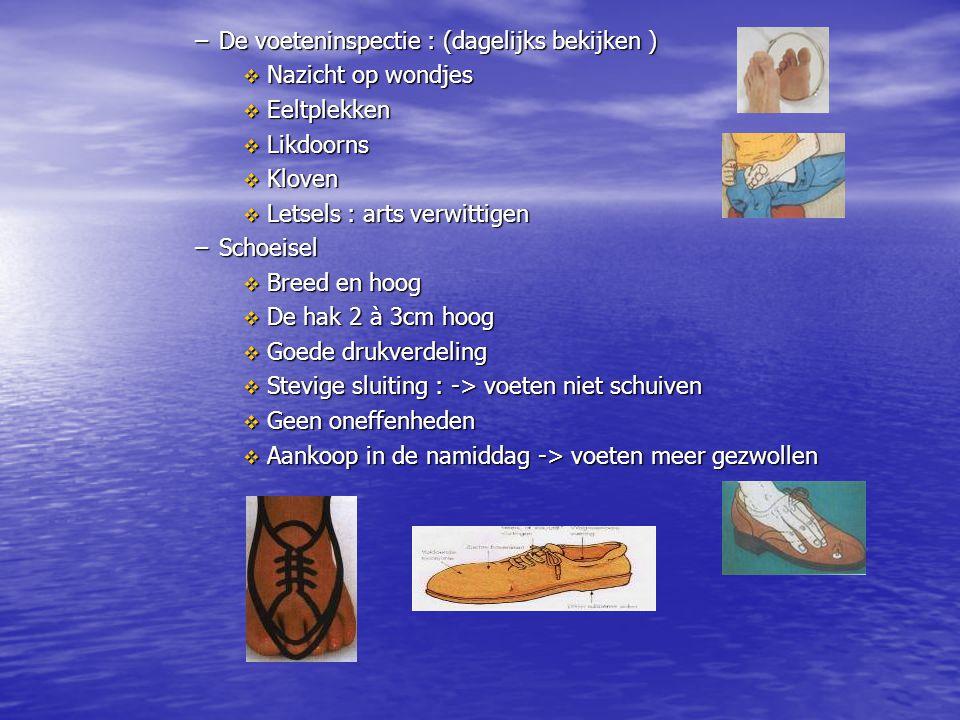 De voeteninspectie : (dagelijks bekijken )