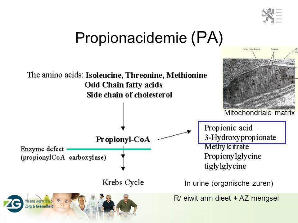 Propionacidemie (PA) Mitochondriale matrix In urine (organische zuren)