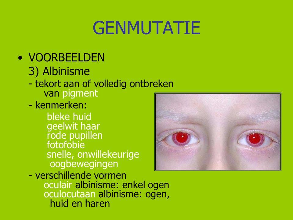 GENMUTATIE VOORBEELDEN 3) Albinisme - kenmerken: