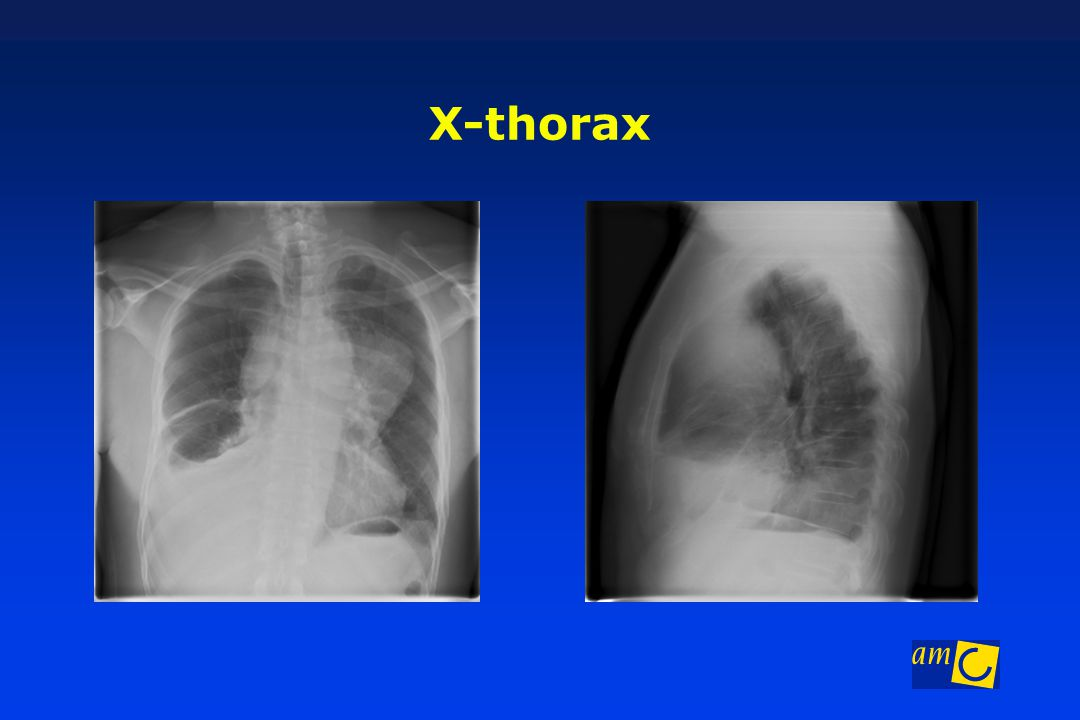 X-thorax Laterale projectie