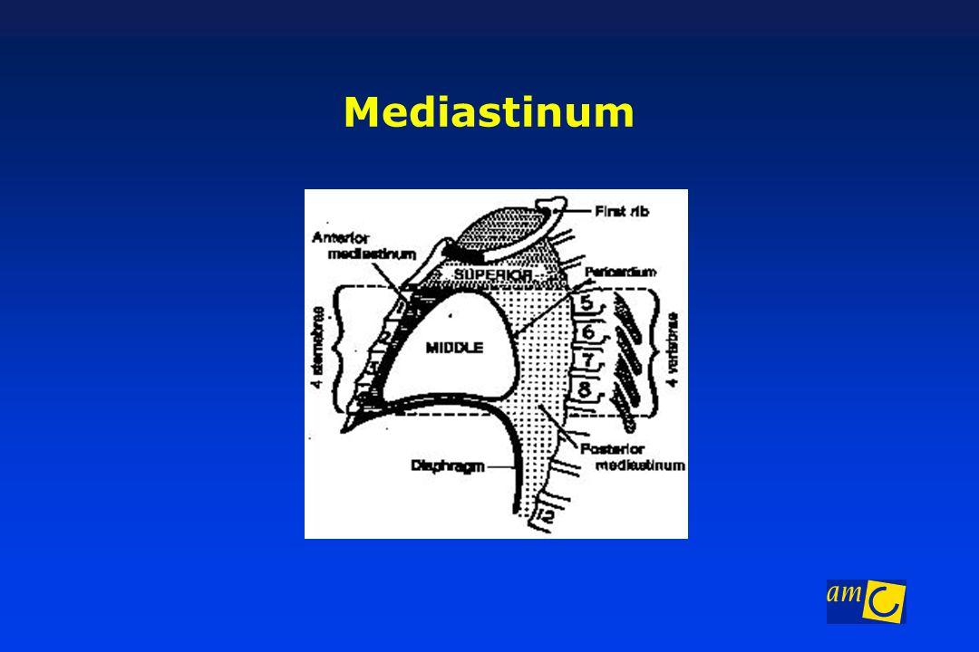 Mediastinum Anatomie mediastinum
