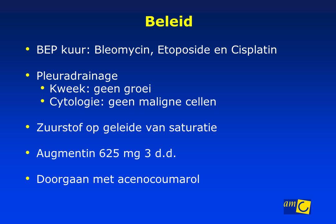 Beleid BEP kuur: Bleomycin, Etoposide en Cisplatin Pleuradrainage