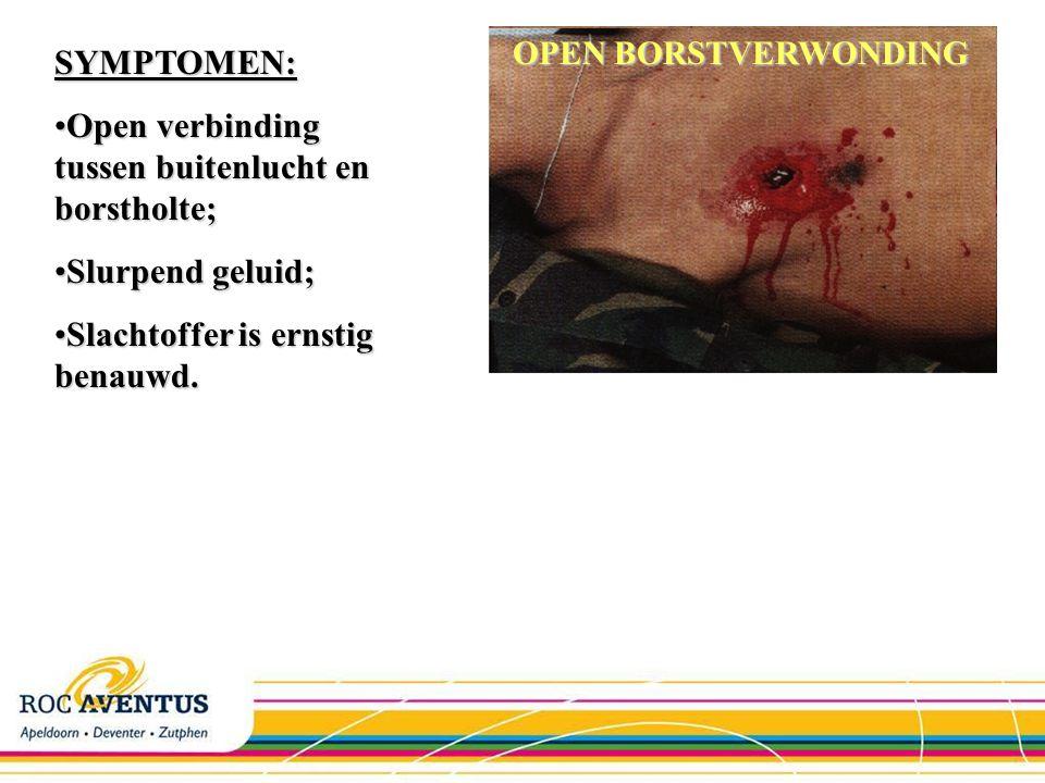 Open verbinding tussen buitenlucht en borstholte;