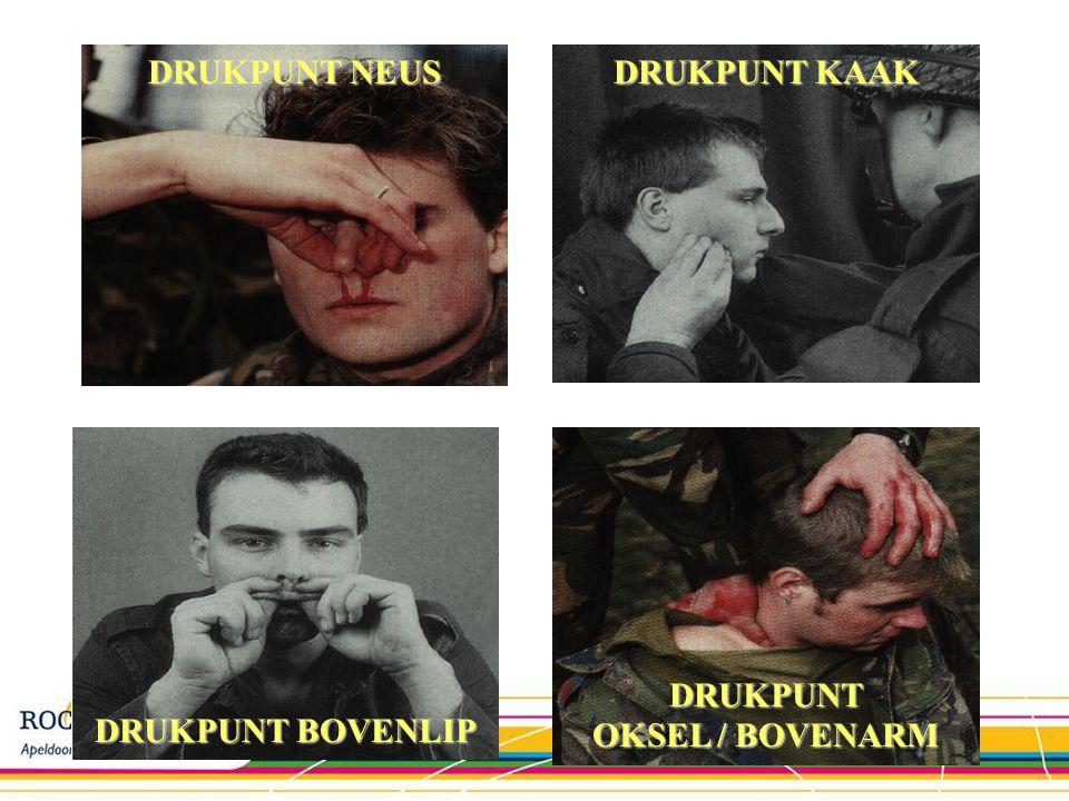 DRUKPUNT OKSEL / BOVENARM