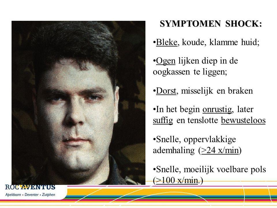 SYMPTOMEN SHOCK: Bleke, koude, klamme huid; Ogen lijken diep in de oogkassen te liggen; Dorst, misselijk en braken.
