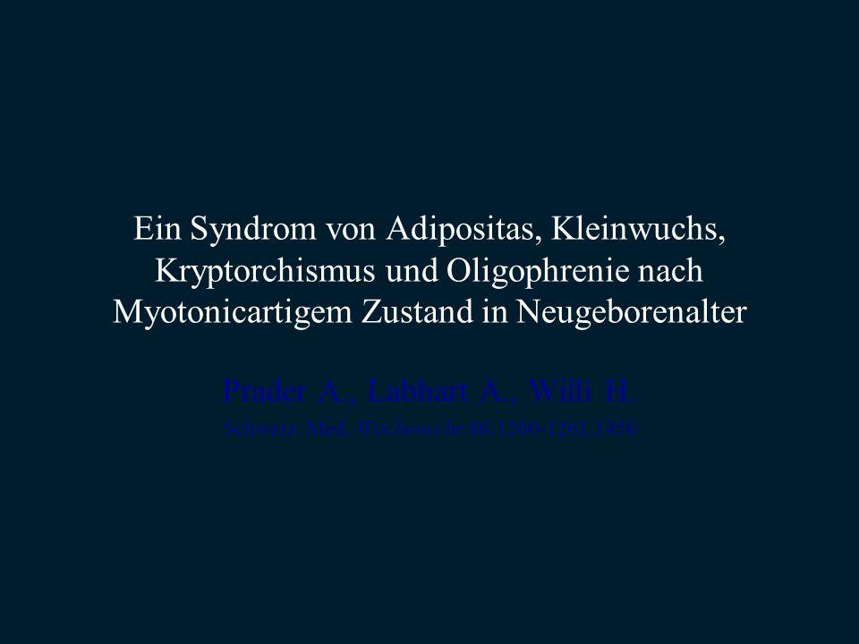 Ein Syndrom von Adipositas, Kleinwuchs, Kryptorchismus und Oligophrenie nach Myotonicartigem Zustand in Neugeborenalter