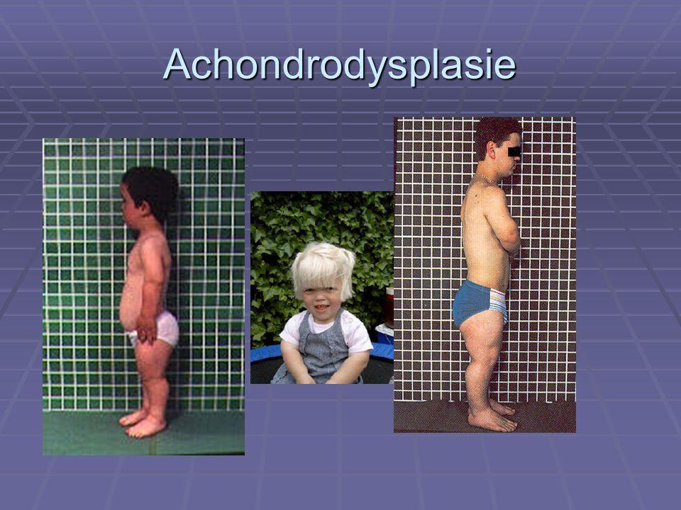 Achondrodysplasie I1/25000 Macrocefalie, lage nesbrug , rhizomelie ( bovenarmen en benen)