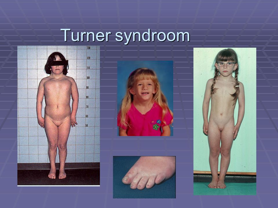 Turner syndroom