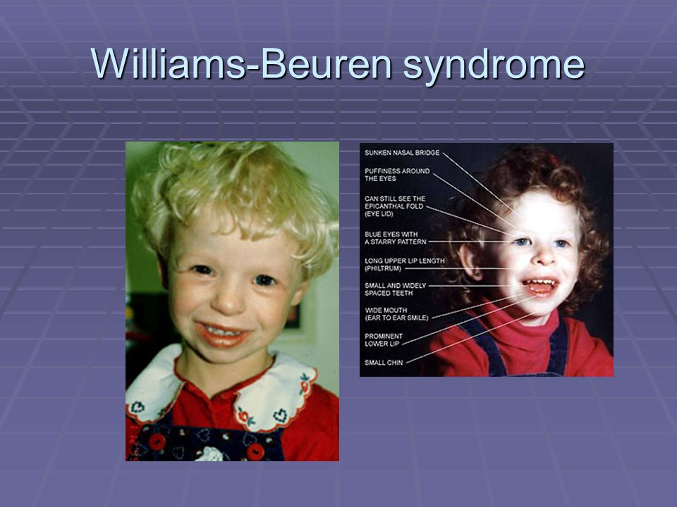Williams-Beuren syndrome