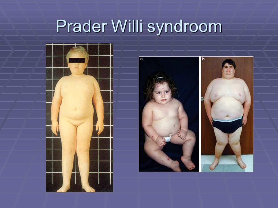 Prader Willi syndroom