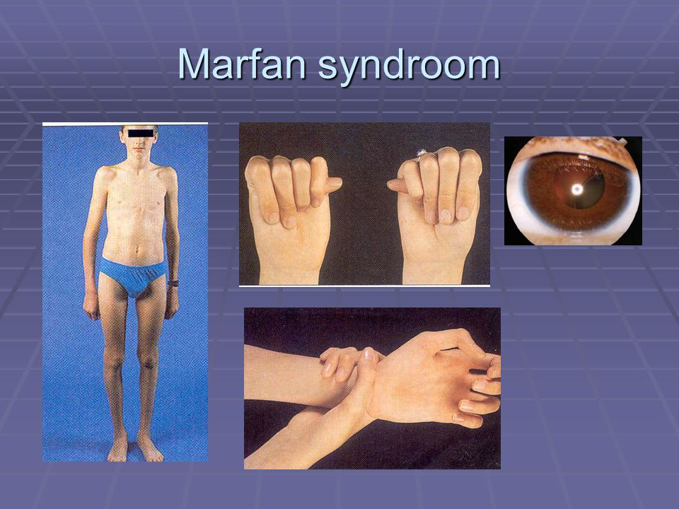 Marfan syndroom