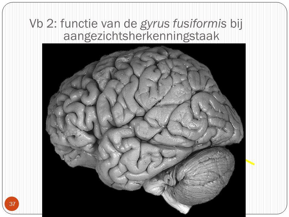 Vb 2: functie van de gyrus fusiformis bij aangezichtsherkenningstaak
