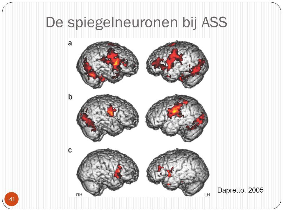 De spiegelneuronen bij ASS