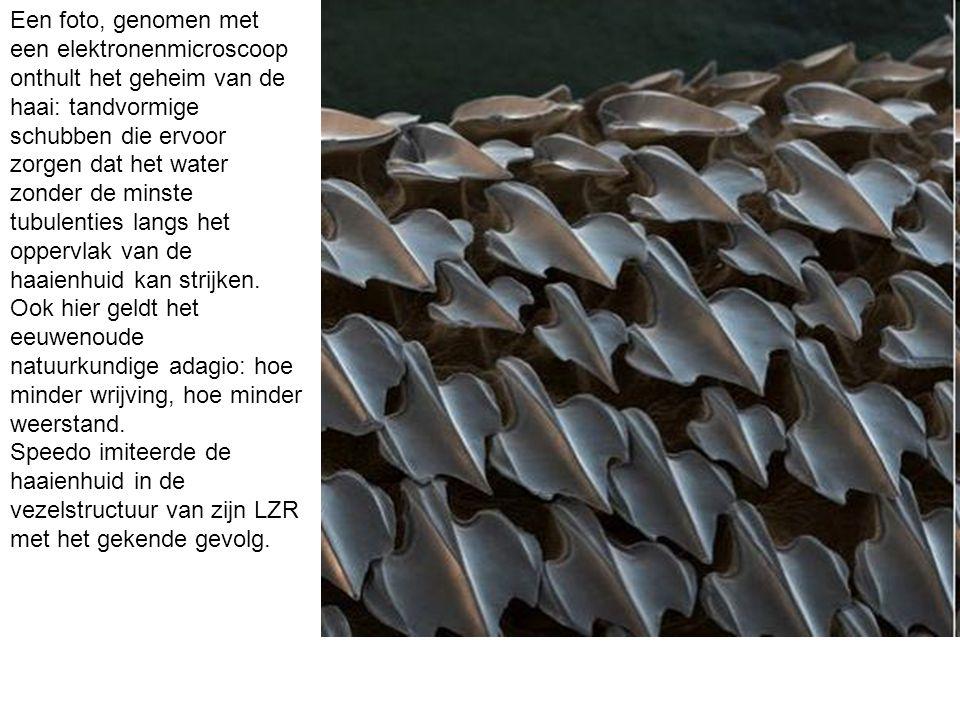 Een foto, genomen met een elektronenmicroscoop onthult het geheim van de haai: tandvormige schubben die ervoor zorgen dat het water zonder de minste tubulenties langs het oppervlak van de haaienhuid kan strijken.