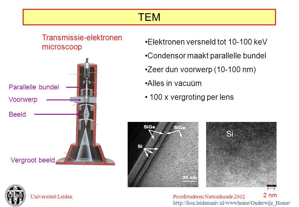 TEM Transmissie-elektronen microscoop