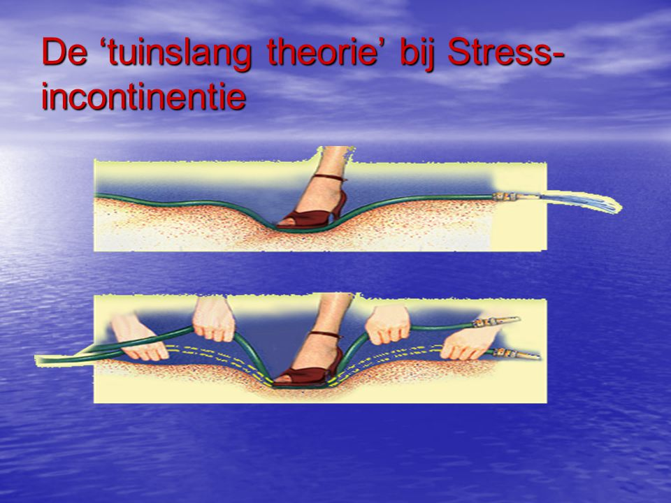 De 'tuinslang theorie' bij Stress-incontinentie