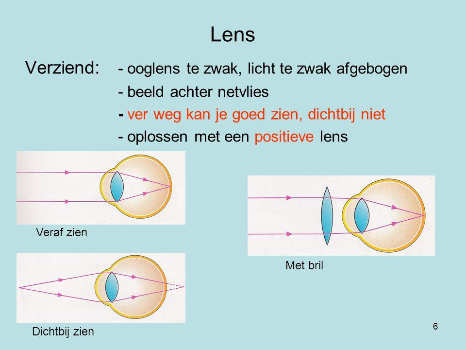 Lens Verziend: - ooglens te zwak, licht te zwak afgebogen