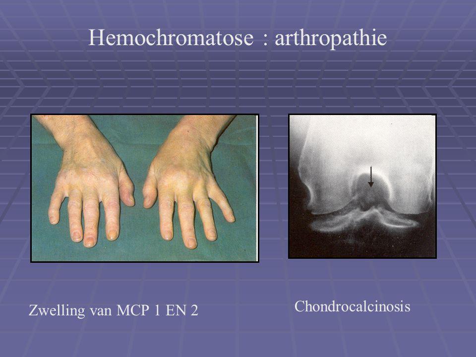 Hemochromatose : arthropathie
