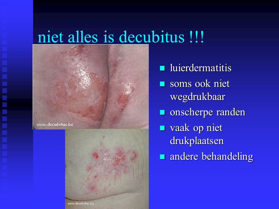 niet alles is decubitus !!!