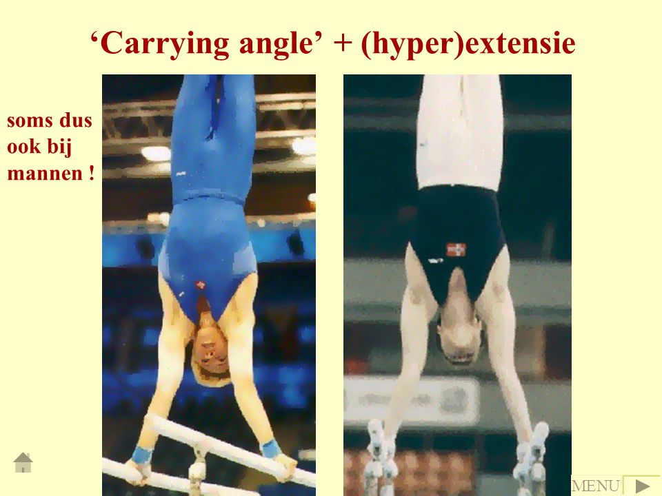 'Carrying angle' + (hyper)extensie