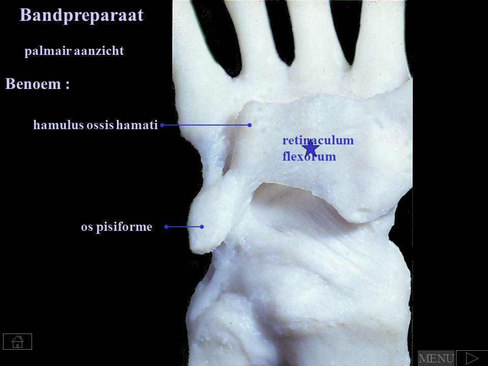 Bandpreparaat Benoem : palmair aanzicht hamulus ossis hamati