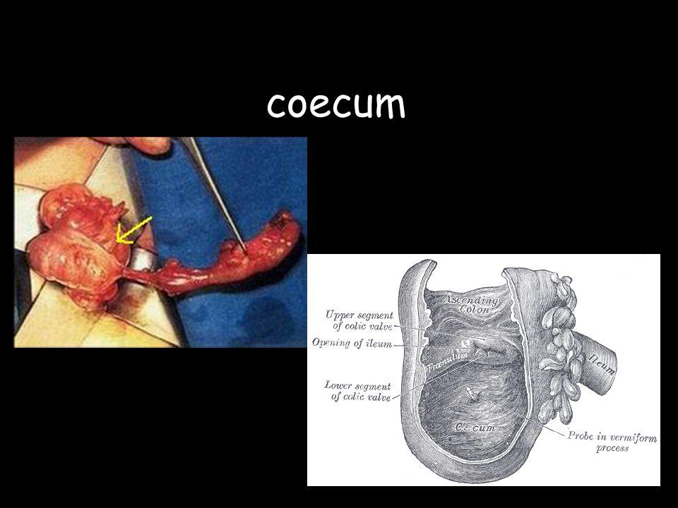 coecum