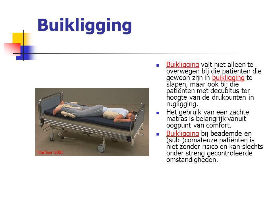 Buikligging