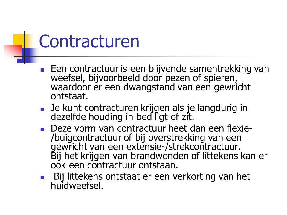 Contracturen