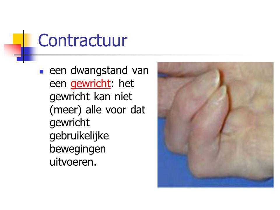 Contractuur een dwangstand van een gewricht: het gewricht kan niet (meer) alle voor dat gewricht gebruikelijke bewegingen uitvoeren.