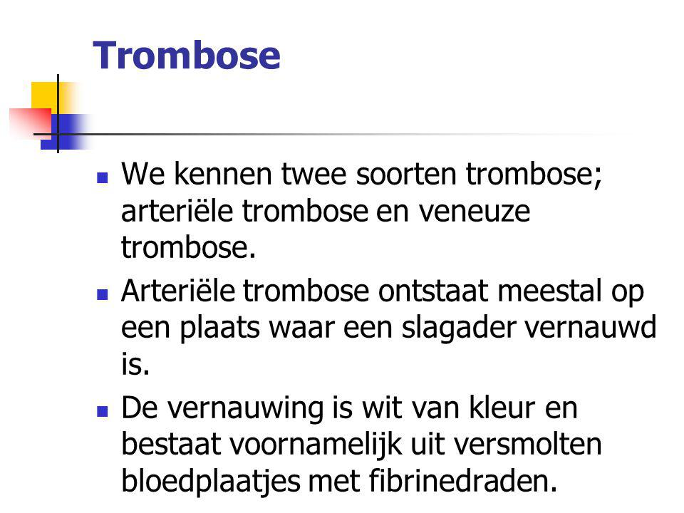 Trombose We kennen twee soorten trombose; arteriële trombose en veneuze trombose.