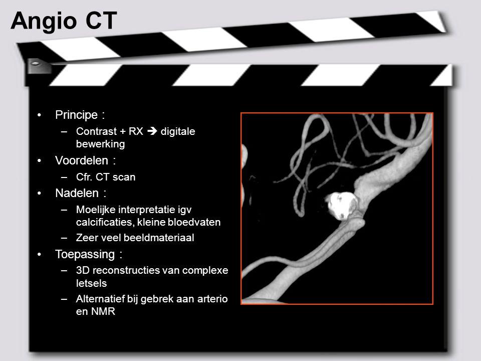 Angio CT ² Principe : Voordelen : Nadelen : Toepassing :