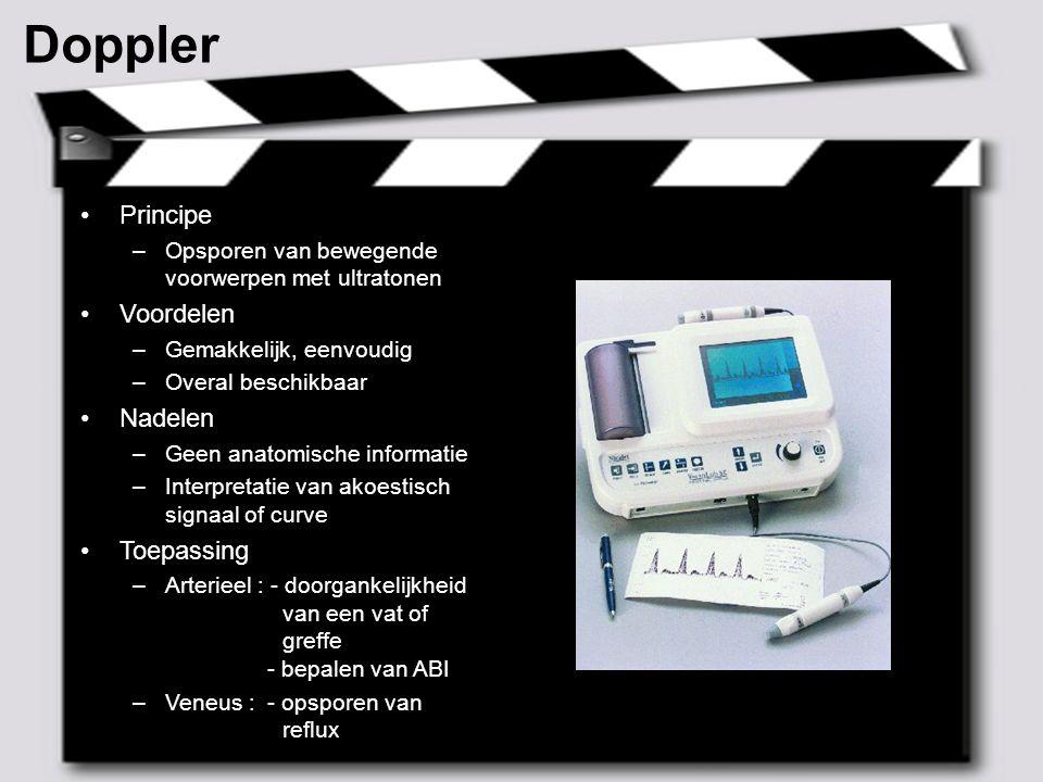 Doppler Principe Voordelen Nadelen Toepassing