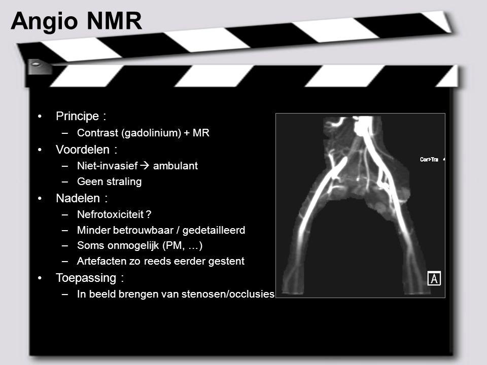 Angio NMR Principe : Voordelen : Nadelen : Toepassing :